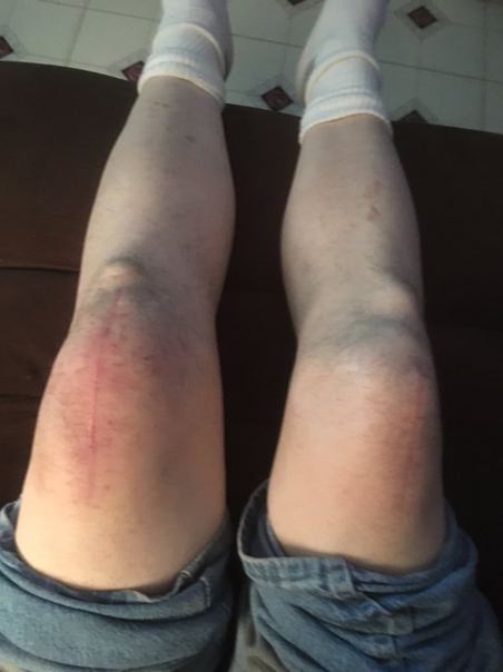 Living with Bilateral Quadriceps