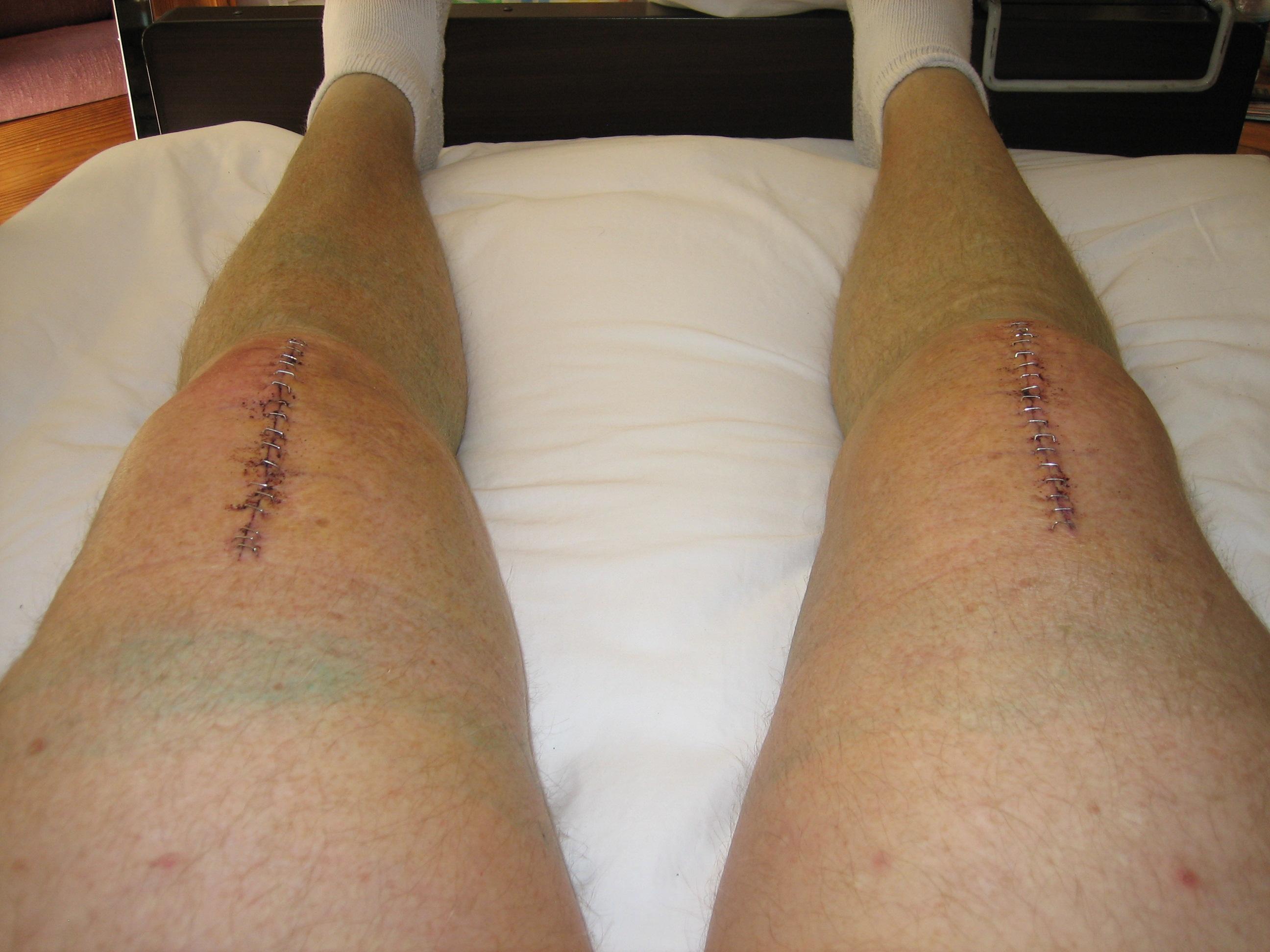 repair torn muscles in abdomen